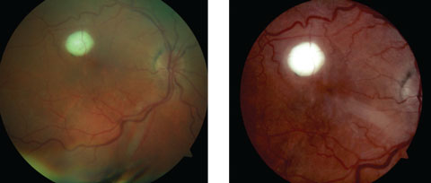 Figs. 1 and 2. Both these fundus photos show our patient's right eye. What does the lesion represent?