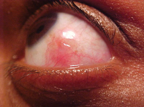 This 22-year-old patient had been experiencing eye pain for about a week. In addition to her history, can this photo help you uncover the cause of her discomfort?