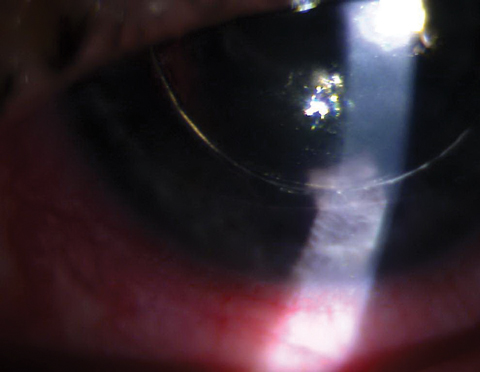 DSEK with gas/air bubble posterior to the iris causing pupillary block.