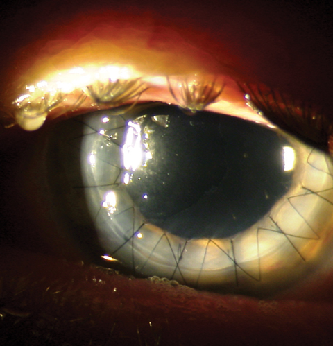 This postoperative patient demonstrates full-thickness penetrating keratoplasty graft with a running suture in place.