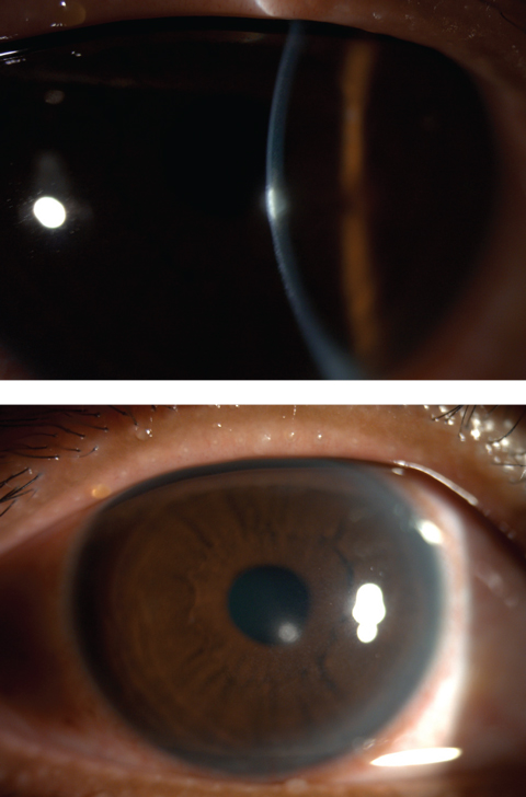 Figs. 4 and 5. Central corneal infiltrates from contact lens wear.