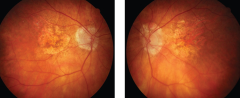Advanced Atrophic AMD May Masquerade As Angioid Streaks