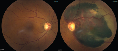 The patient's left eye (at right) shows subretinal hemorrhaging, but the right eye shows no signs of macular degeneration.
