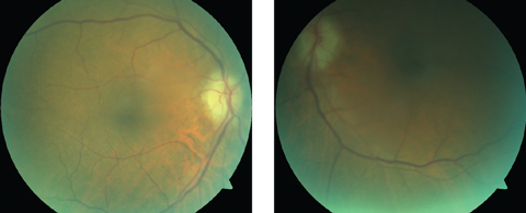 Although our patient's optic nerve photos were compromised due to her cataracts and imperfect fixation, they show pallid disc edema, which is characteristic of GCA/AION.