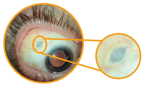 After inserting Roche's investigational Port Delivery System, the surgeon pulls the conjunctiva back over the implant—leaving the device slightly visible to the naked eye.