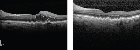 Wet AMD patient before (left) and after (right) treatment with Lucentis. The PDS hopes to maintain clinical improvements of this kind while reducing the treatment burden.