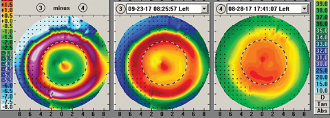 Fig. 2. Measurements taken during a corneal reshaping patient's first morning show a central island, indicated by the small zone of central corneal steepening.