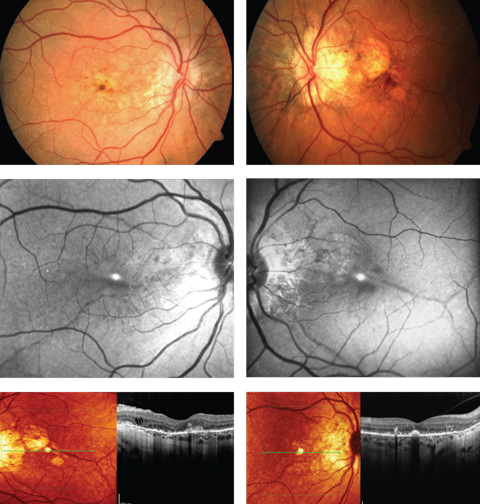 A 52-year-old woman complained of progressive blurriness in both eyes. What can these images and her history combined tell you about her possible diagnosis?