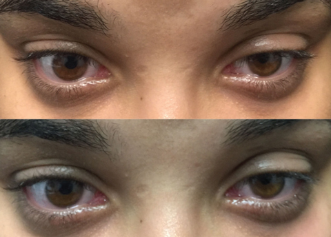Steroid eye drops droopy eyelid belgian steroid cows