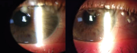 Fig. 2. These images show our patient's significant improvement in ocular signs and symptoms after two days of treatment.