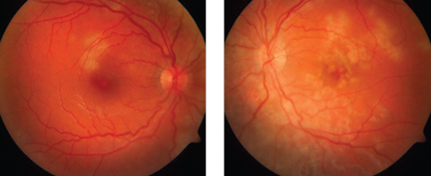 Fig. 1. A-27-year-old female presented one week after a flu-like illness with floaters and blurred vision. Multifocal cream-colored flat placoid lesions were found in the posterior pole of each eye.