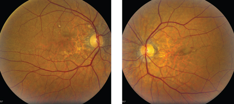 Fig. 1. Although our patient's initial complaint was a red eye, can you identify any other pathology based on her fundus photographs?