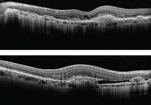 Fig. 2. Can you identify our patient's diagnosis based on the OCT images of our 58-year-old patient's right (at top) and left eyes?