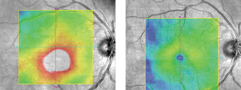 Figs. 1 and 2. This patient's center-involved DME (left) responded well to anti-VEGF (right).