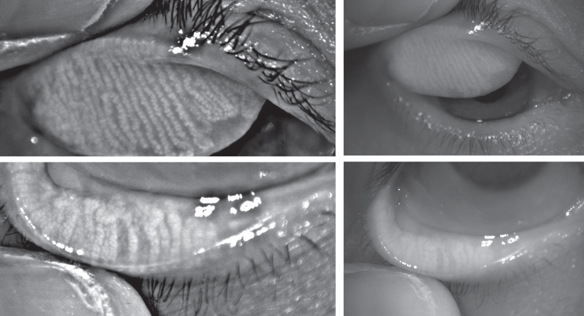 Infrared images of the upper and lower eyelids with non-invasive meibography shows healthy, long meibomian glands.