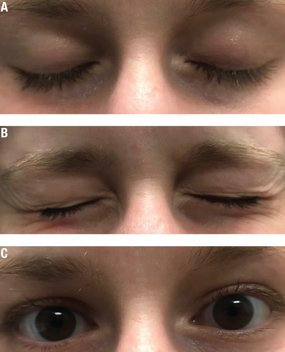 Fig. 1. Blinking exercises will help make proper complete blinking a habit. The blink sequence: (A) Close normally for a count of two and open. Close normally for a count of two again. (B) Squeeze the eyelids together for a count of two. (C) Open to complete the blink sequence.