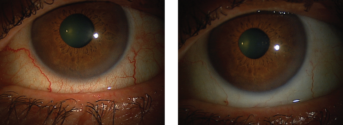 This patient's red eyes cleared up after instilling Lumify, and they can expect the effects to last six to eight hours.