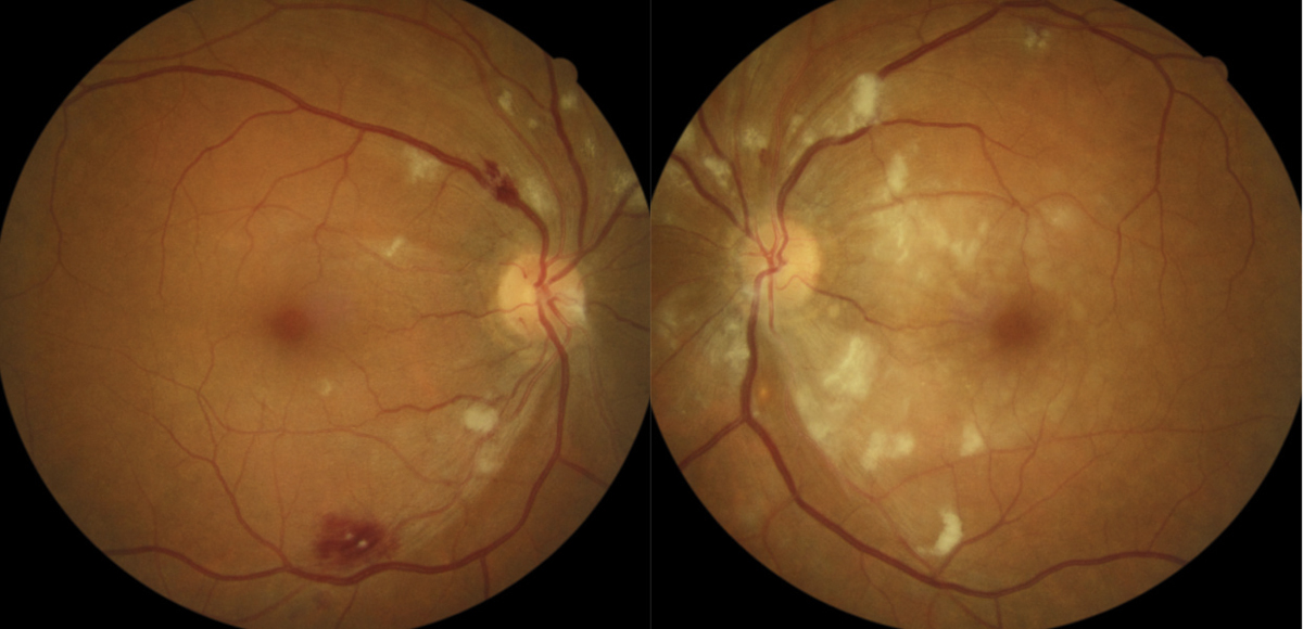 Busted Barriers: Triaging Retinal Hemorrhages