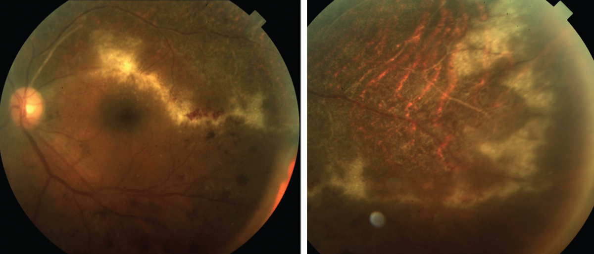 The Bugs Behind Infectious Retinitis