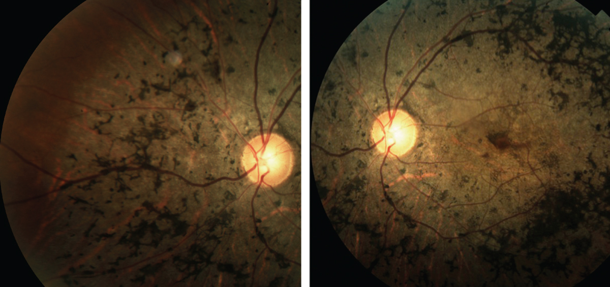 Fig. 2. These images depict the classic presentation of syphilitic retinopathy.