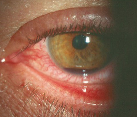 Hyphema, seen here, is common after athletic injury or other trauma.