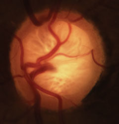 Glaucomatous cupping with characteristic loss of neuroretinal rim, lamina and alteration of the vasculature.