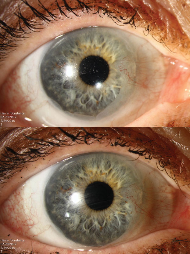 These images depict a soft contact lens before (top) and after (bottom) Hydra- PEG treatment.