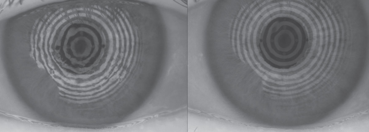 Fig. 1. The restoration of a smooth corneal and refractive surface can be seen in these before, at left, and after placido ring reflections after amniotic membrane therapy.