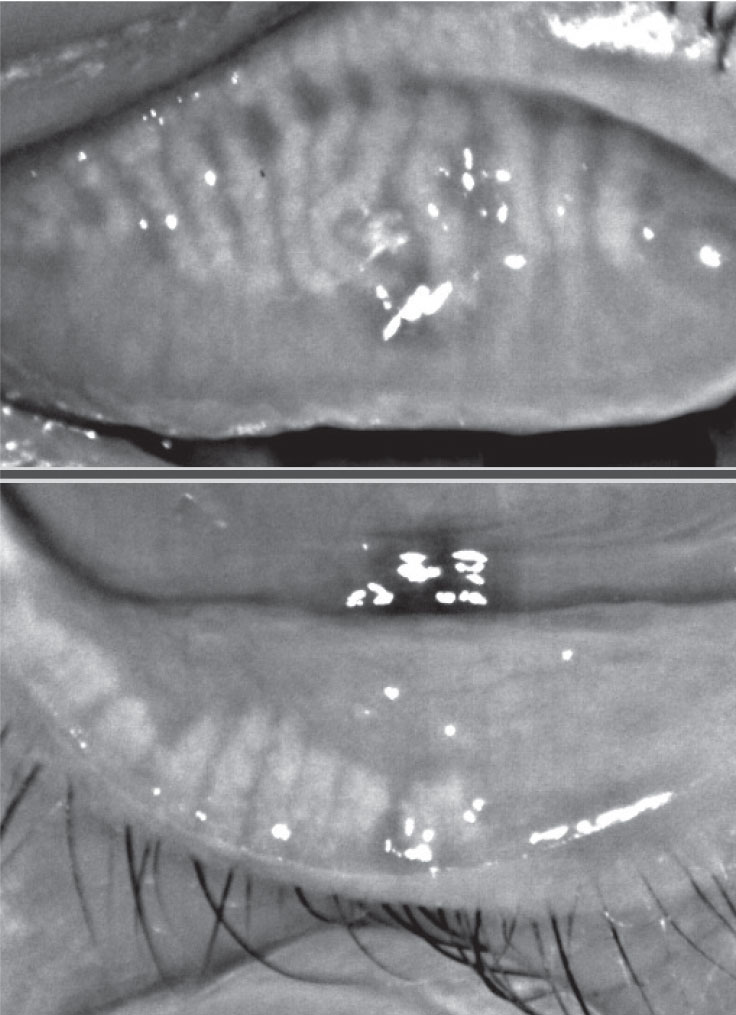 Fig. 2. This patient with 75% meibomian gland atrophy may benefit from in-office MG expression.