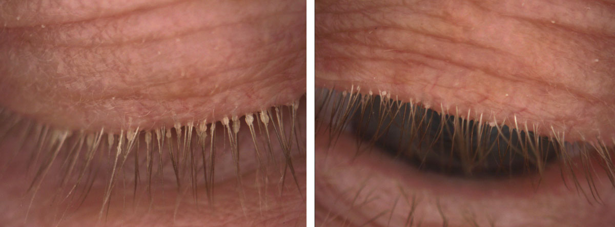 Fig. 3. This patient, seen here before (at left) and after treatment, experienced significant improvement in signs and symptoms of Demodex infestation with four months of tea tree oil foam cleanser QHS.