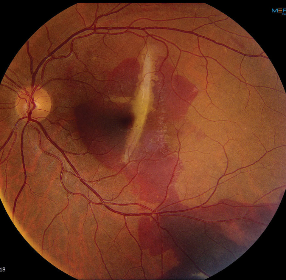 Fig. 3. This fundus photo shows our patient two weeks later. What do you see now?