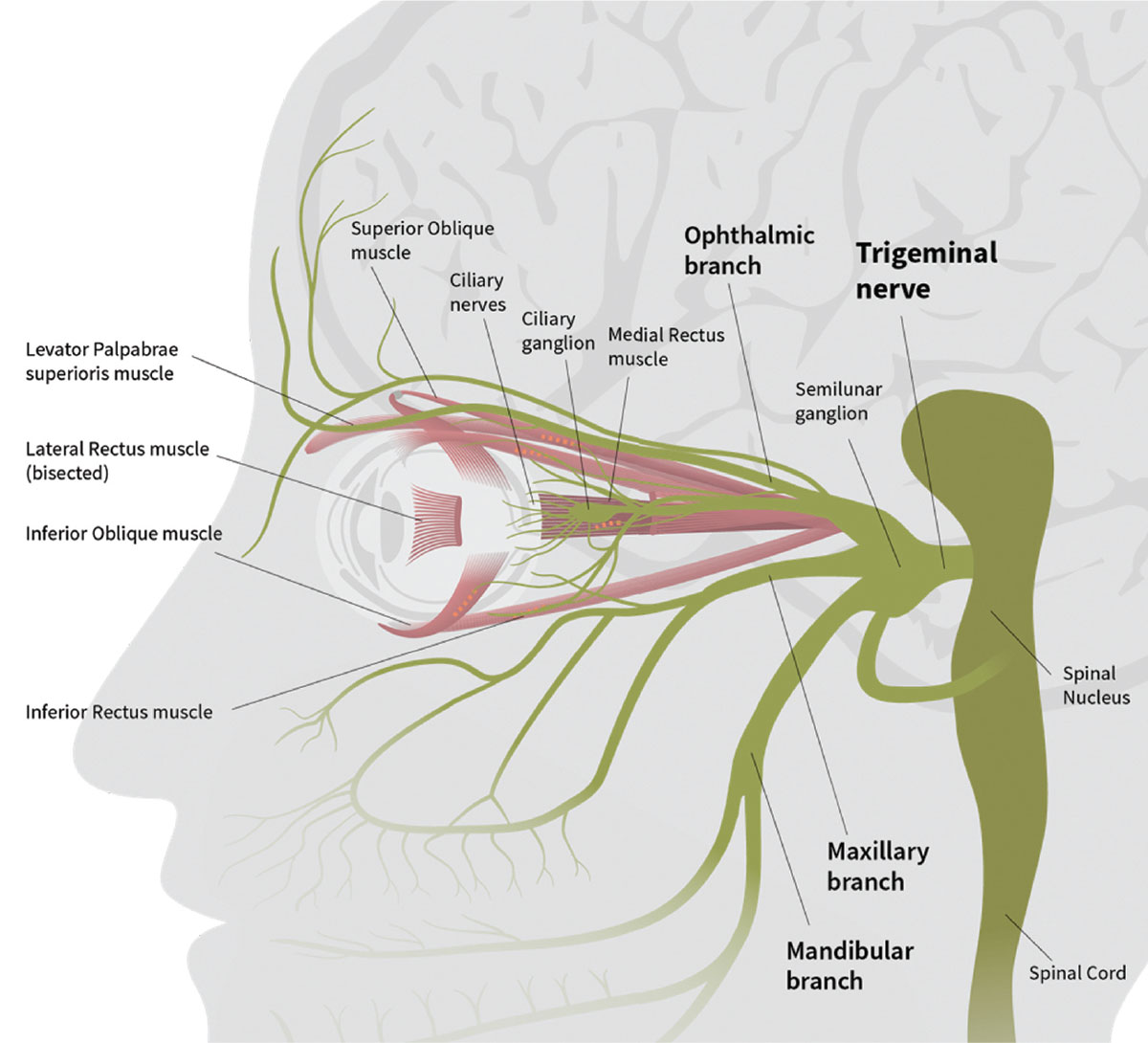 Research now suggests specialized lenses can help patients overcome symptoms of dysfunction of the ophthalmic branch of the trigeminal nerve, trigeminal dysphoria.