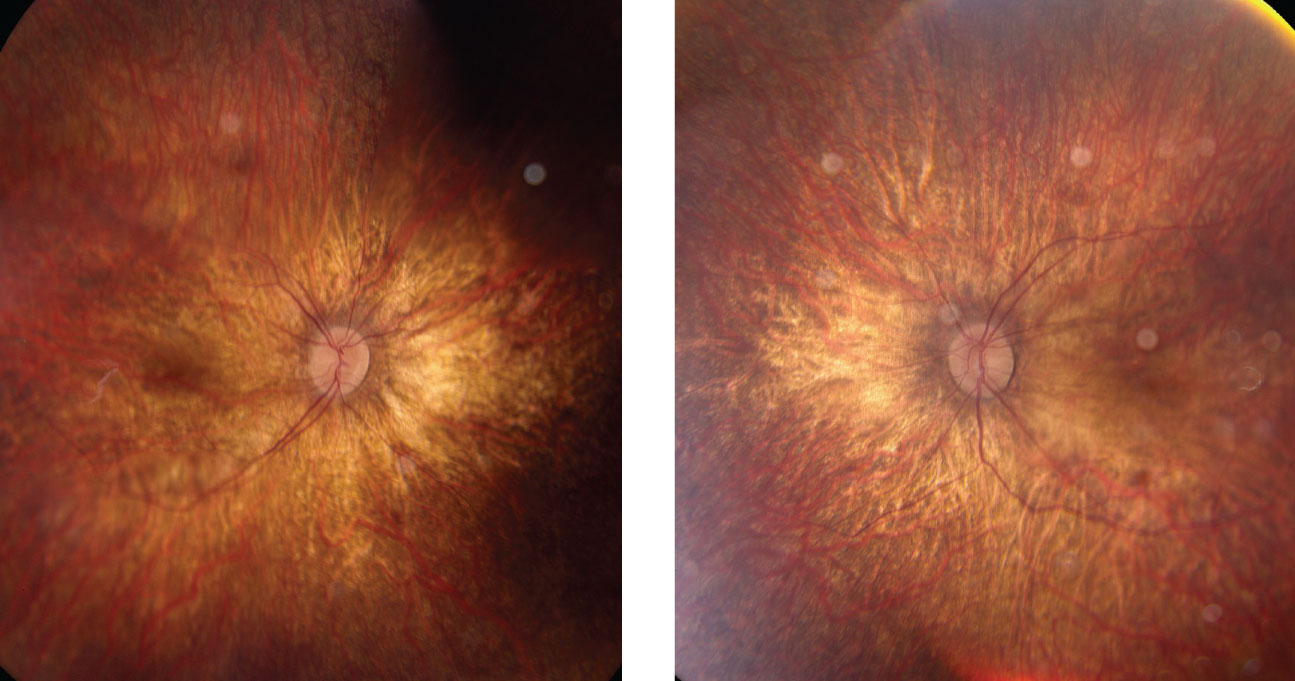 Right and left eyes of our young patient showing an ultra-widefield view of the posterior pole and periphery. What pathology could explain his blurry vision?