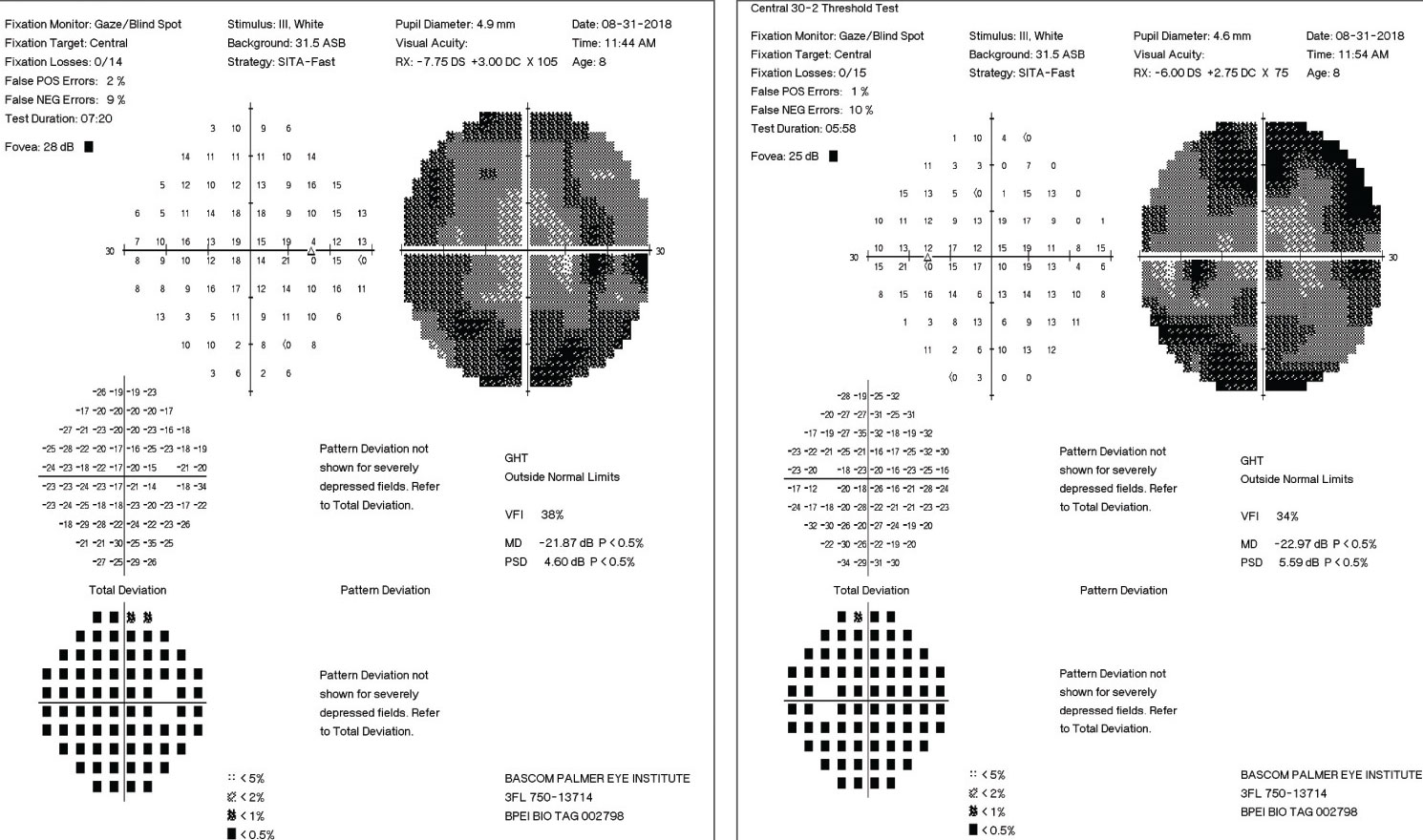 These 30-2 visual fields showing significant loss of the peripheral fields in each eye.