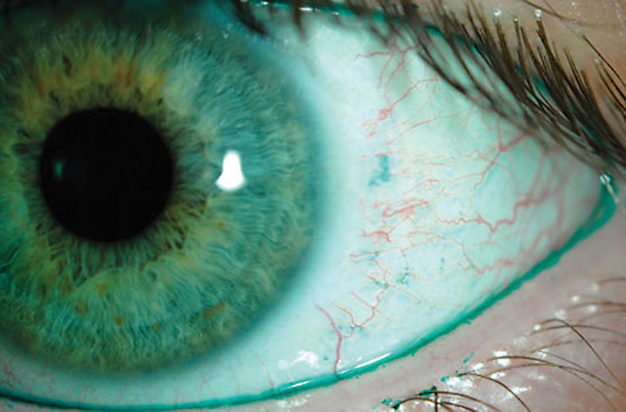Pink Eye Said to be a Possible Symptom of COVID-19