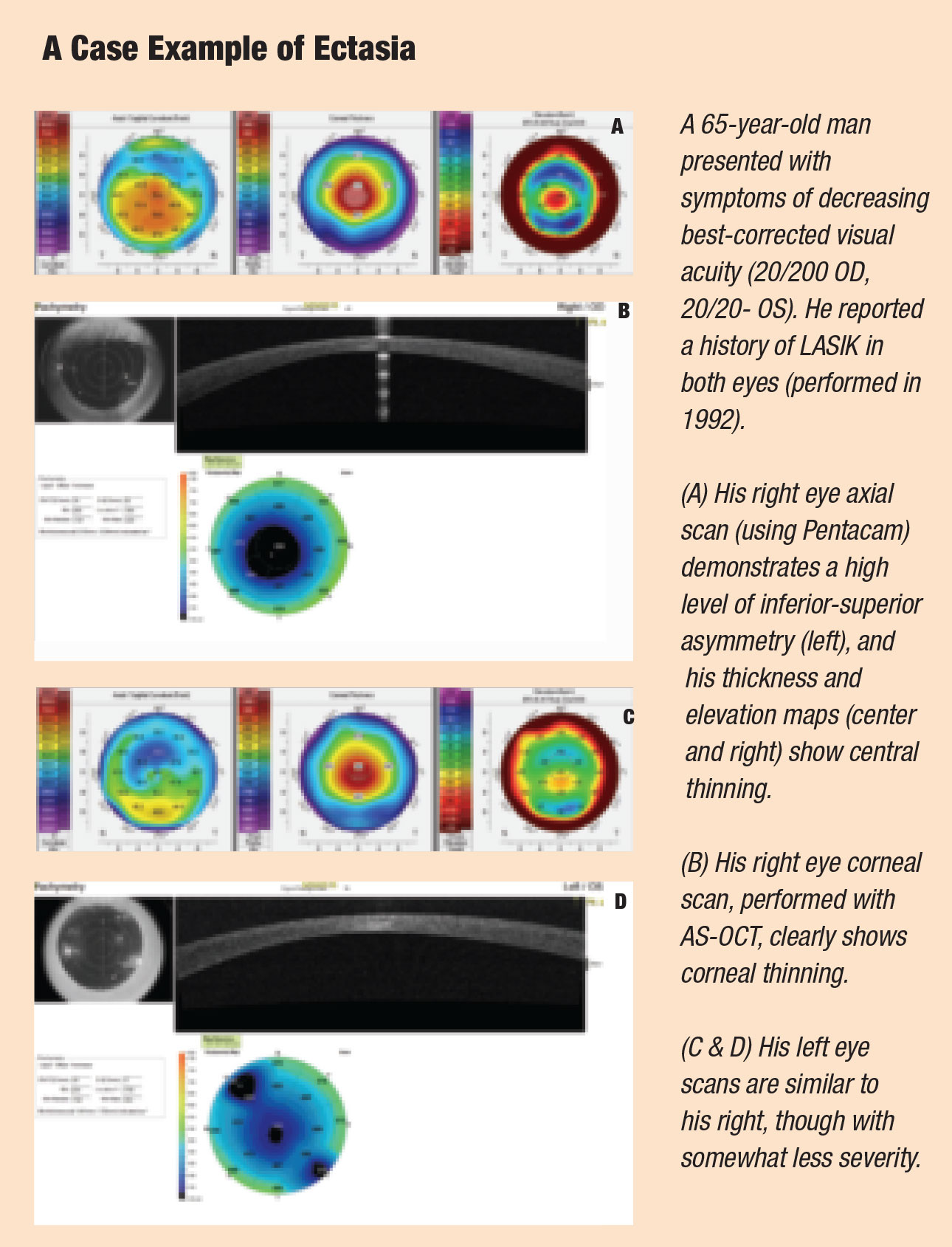 Corneal promise How to Assess the Risk of Post LASIK Ectasia