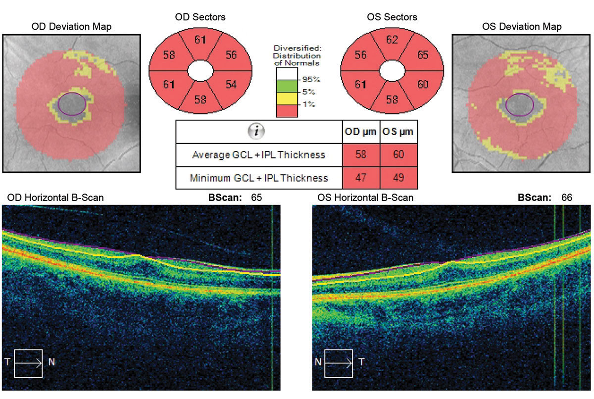 Ganglion cell analysis revealed a reverse foveal pit and no vitreal macular traction.