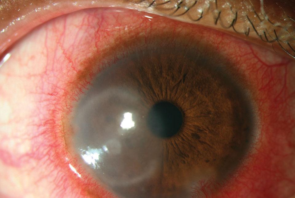 Red Eye Roundup