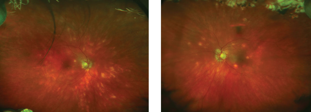 These fundus images show the patient four years following her initial diagnosis.