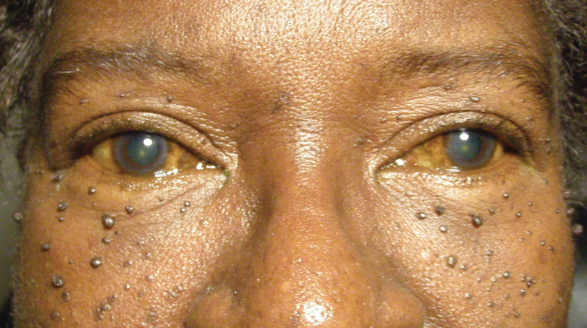 This 67-year-old woman is suffering from both skin lesions and blurry vision. Can you identify the cause of her visual disturbances?