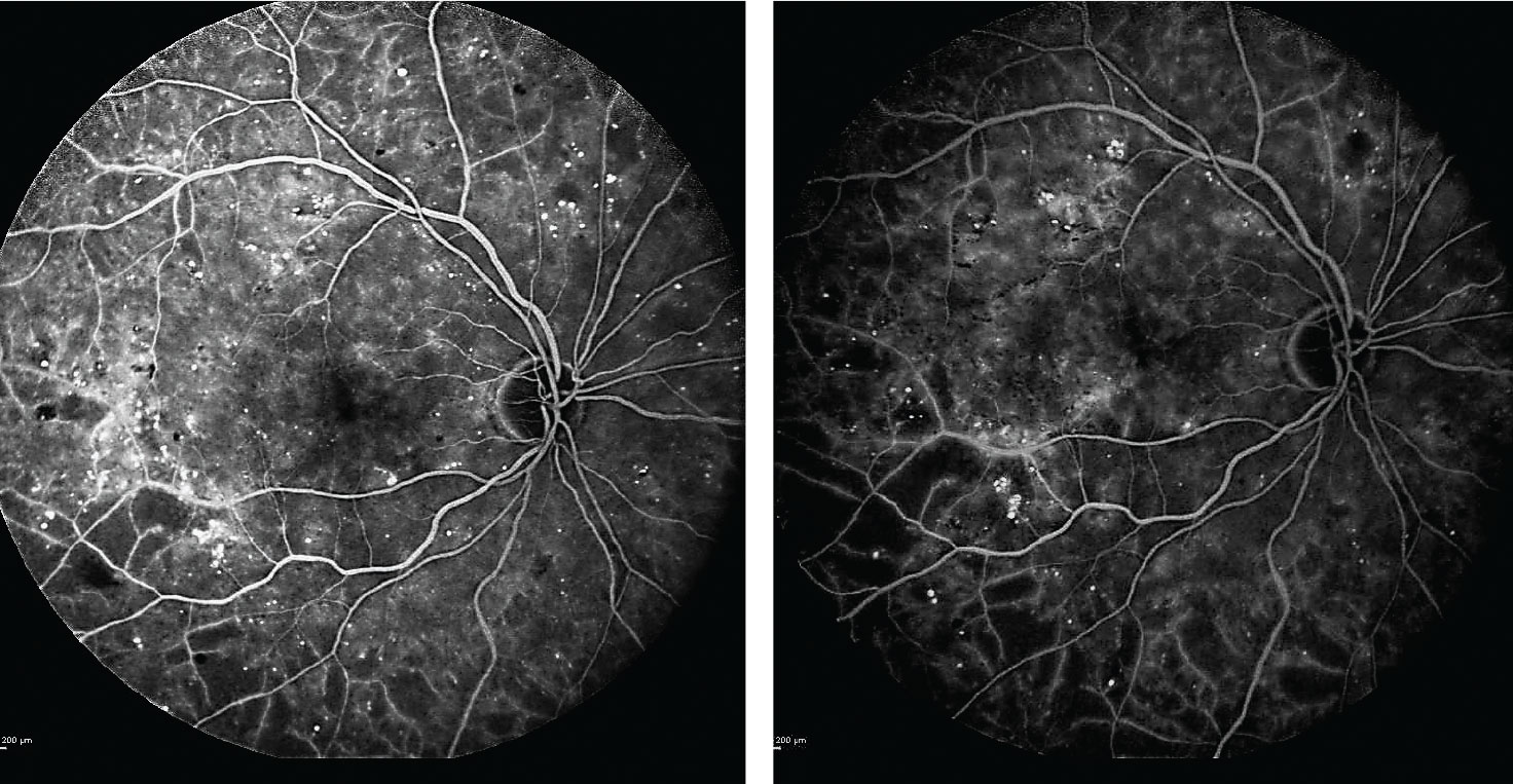 Fig. 2. After beginning anti-VEGF treatments, the patient's subsequent fluorescein angiograms at one and two years into the regimen (left and right images, respectively) confirmed no progression of ischemia or evidence of proliferative diabetic retinopathy.