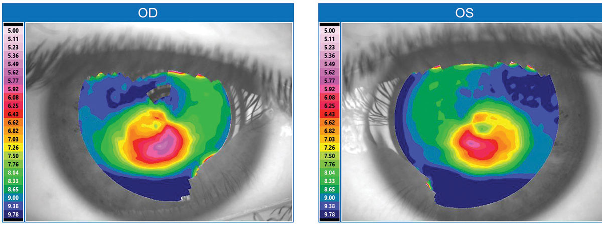 Fig. 1. This topographical map is typical for a keratoconus patient.