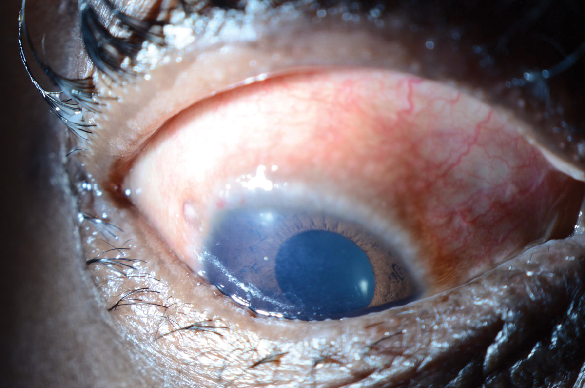 Fig. 3. This patient with vernal keratoconjunctivitis presented with limbal Horner-Trantas Dots.