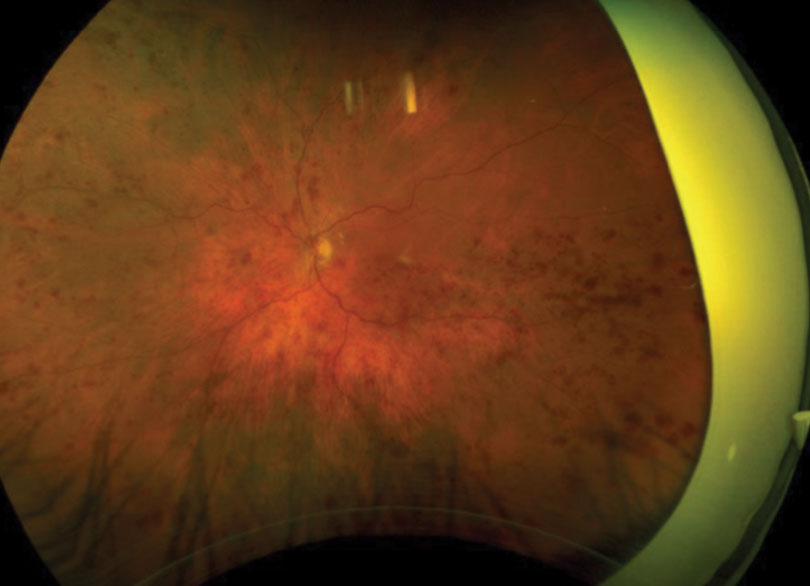 Fig. 1. This patient presented with retinal hemorrhages and cotton-wool spots in all four quadrants of his left eye.