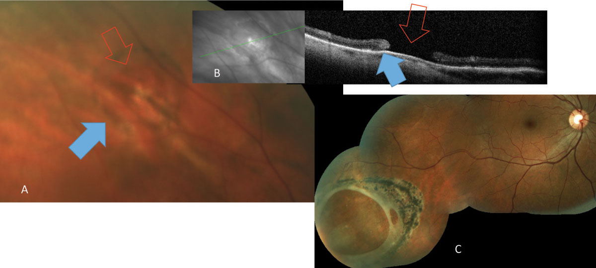 Fig. 1. Atrophic retinal hole (red arrows) noted both on (A) fundus photograph and (B) OCT. The ring of pigmentation (blue arrows) is a reactive repair due to separation of neurosensory retina and the retinal pigment epithelium. (C) A large atrophic hole noted in routine examination and subsequently treated with laser.