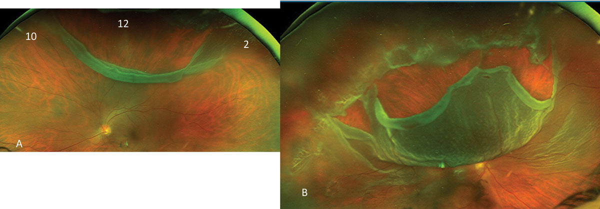 Fig. 15. This more-than-three-clock-hour wide retinal break (A) with limited retinal detachment is seen, while (B) shows a near total RRD.