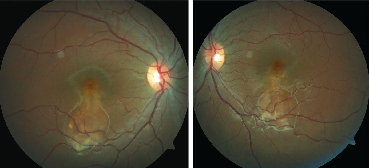 This 16-year-old presented for a routine exam, but an evaluation of her fundus revealed something amiss. Can you identify it?