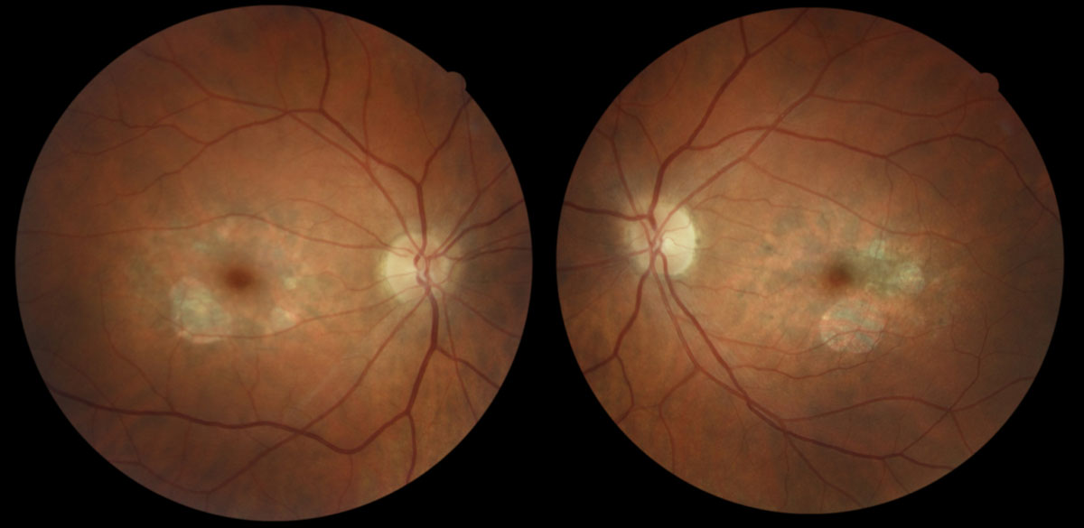 Fig. 1. Parafoveal RPE atrophy with scattered deposits in both eyes of a 43-year-old Caucasian female with butterfly pattern dystrophy. Her best-corrected visual acuity is 20/20 in each eye.