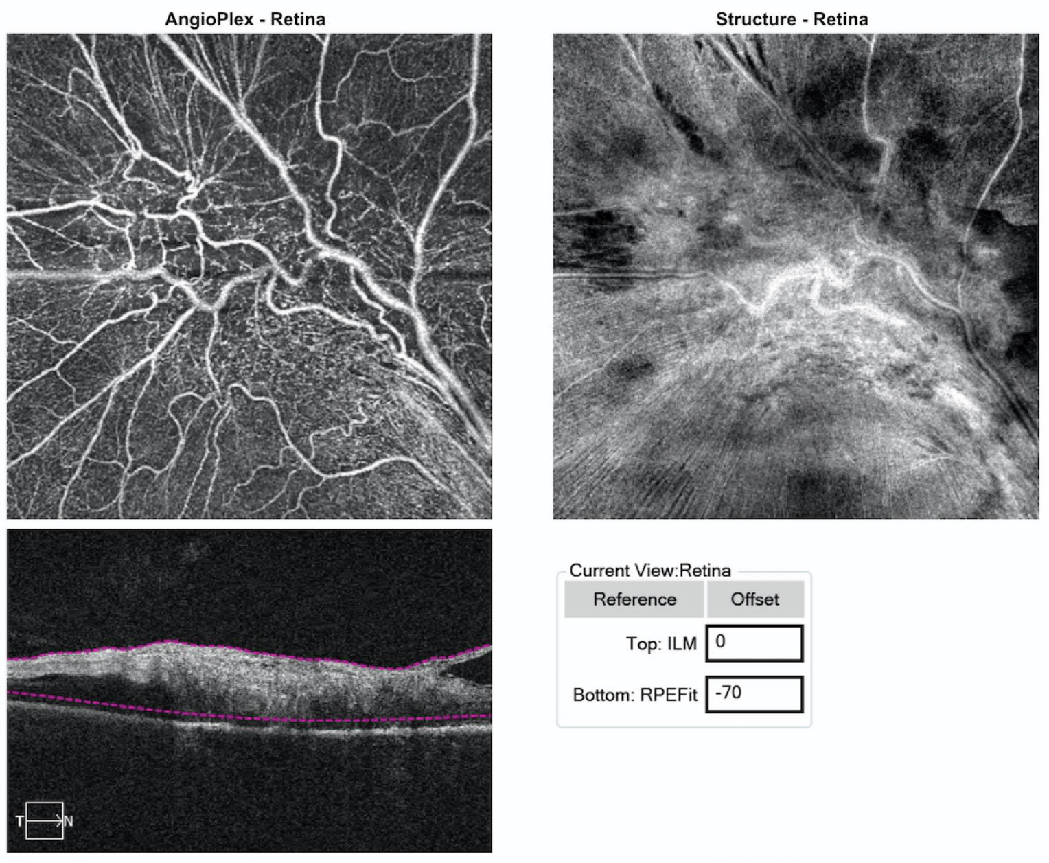 Fig. 3. These images represent 6x6mm OCT-A of the lesion. Note the findings within the sensory retina.