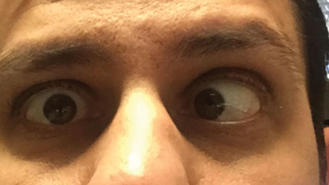 Double vision   Diplopia - Utsav Eye Clinic